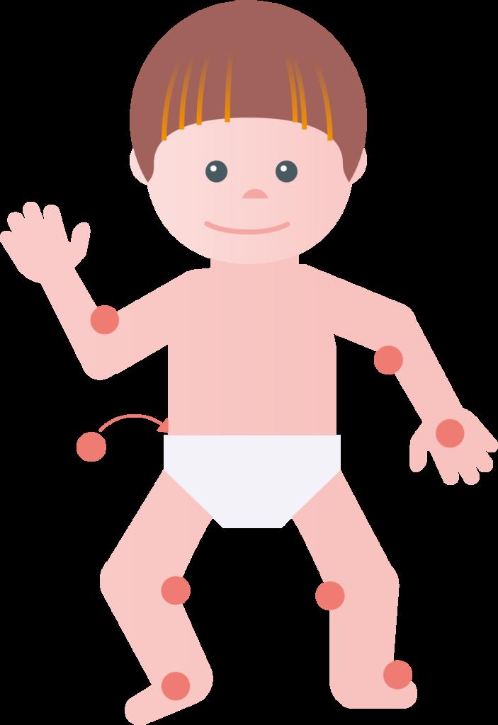 Neurodermitis betroffene Stellen Kleinkind